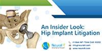 hip-implant
